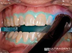 Opalescence-Boost-Procedure_Step-5