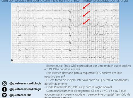 CASO ECG I: Dor torácica na emergência
