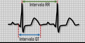 Como calcular o intervalo QT?