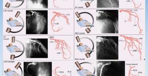 Quais as principais projeções durante exame de cateterismo cardíaco e suas relações com as artérias