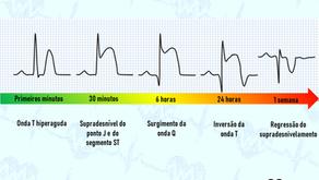 Como acontece a evolução eletrocardiográfica do supra de ST?