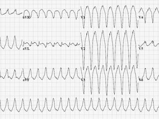 Taquicardia com QRS largo: TV ou TSV com aberrância?