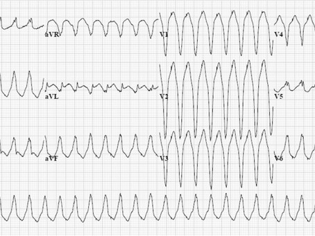 Conduta na taquiarritmia de QRS largo: usando os critérios de Brugada