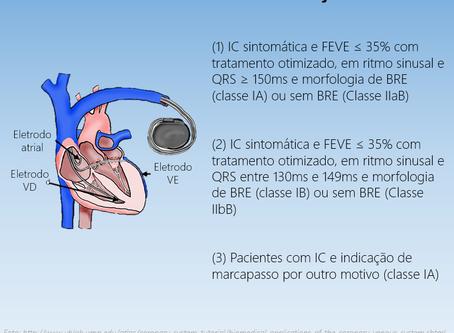 Indicações de terapia de ressincronização cardíaca