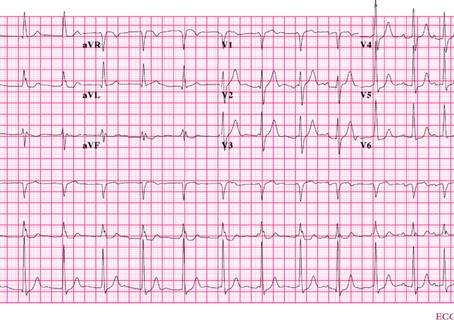 Caso ECG 2: paciente assintomático em risco cirúrgico