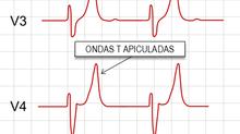 Hipercalemia: como reconhecer ao ECG e como tratar