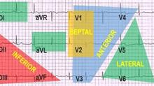 Como identificar o local do infarto pelo eletrocardiograma?