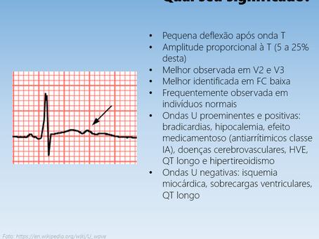 Onda U ao ECG: qual o significado?