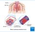 Quando e como fazer a trombólise na embolia pulmonar