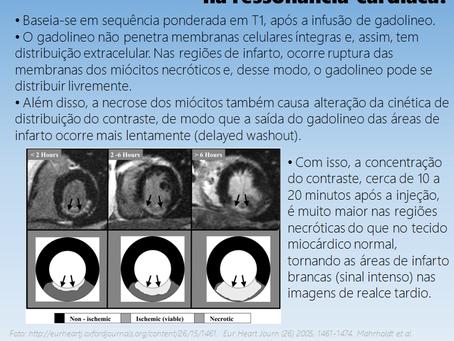 O que é o realce tardio na ressonância magnética cardíaca?