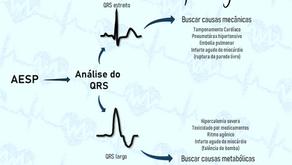 PCR em AESP: Como a análise do QRS pode te ajudar?