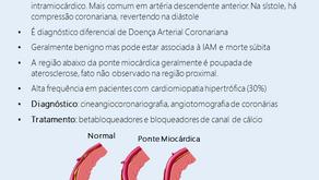 Ponte miocárdica: o que você precisa saber?
