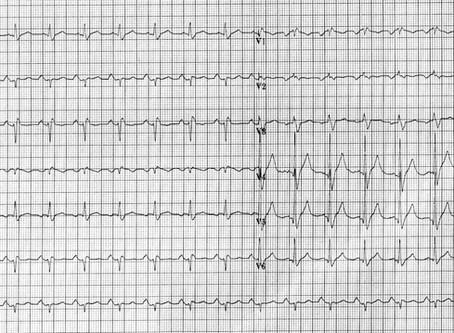 Alteração no ECG de atleta assintomático: o que fazer?