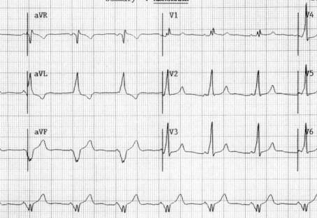 Atleta assintomático traz ECG para consulta: o que fazer?