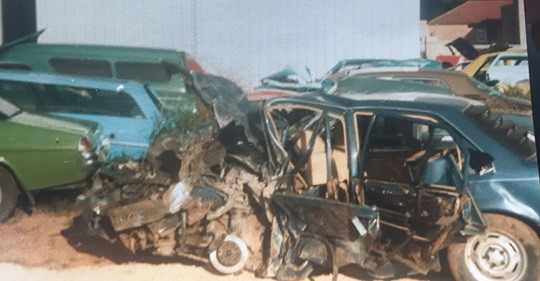 """""""Lucky to be alive! A fatal car crash from when I was 19 years young in South Australia."""