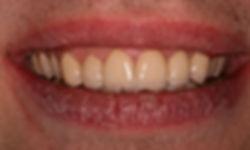 Veneers help bring your teeth back to life again