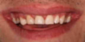 Teeth whitening aims to make a patients teeth whiter and stand out from the crowd