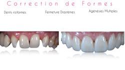 présentation_clinique_hoche_Monceau_si