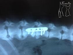 raiox-apos-cirurgia-de-coluna.jpg