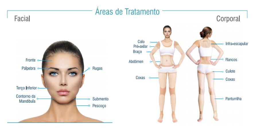 areas de tratamento.PNG