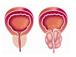 علاج تضخم البروستاتا الحميد بدون جراحة