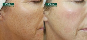 Skin Treatment, Facial. Before and After, Pigmentation