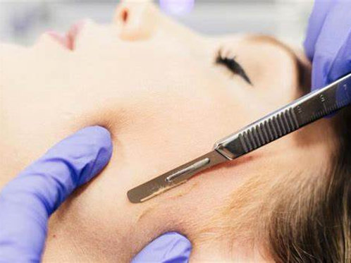 Dermaplane Training