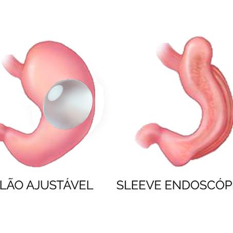 Porquê eleger um tratamento endoscópico de obesidade