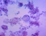腐植 微生物①.png