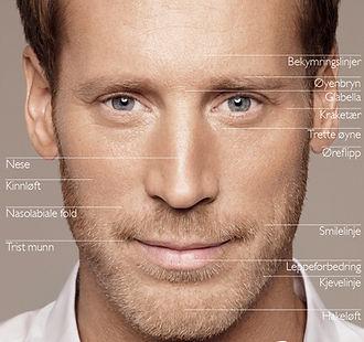 Restylane-behandling-av-menn.jpg