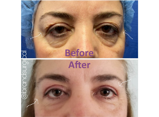 The CURE to Droopy, Sagging Eyelids... A Blepharoplasty!!!