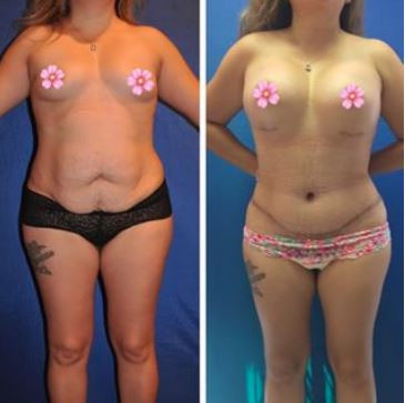 Mommy Makeover Breast Augmentation and Tummy Tuck