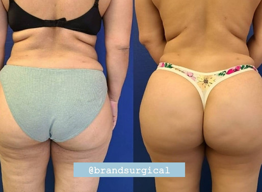 4 Amazing Facts about the BBL (Brazilian Butt Lift) Procedure!
