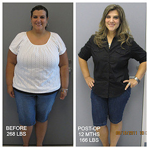 12 MONTHS POST WEIGHT LOSS SURGERY