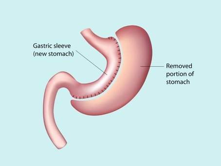 Everything You Need to Know about the Gastric Sleeve Weight Loss Procedure