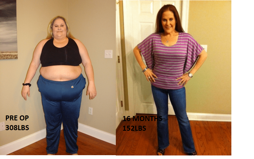 GASTRIC SLEEVE BEFORE AND AFTER