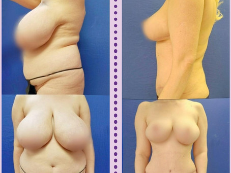 Breast Reduction Surgery: What You Need to Know