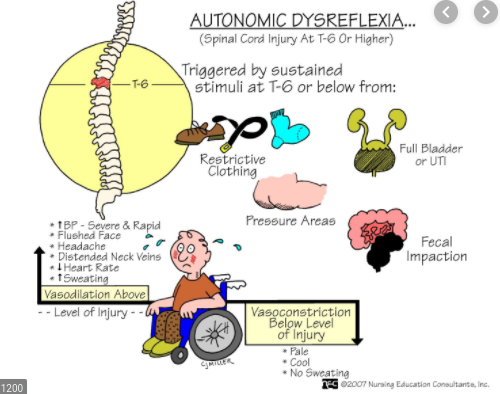 AD is commonly associated with spinal cord injury patients but those with auto-immune neurological disorders also can suffer from it!