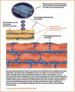 liposoom1
