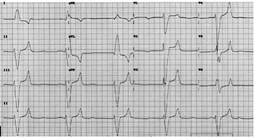 Reto EKG