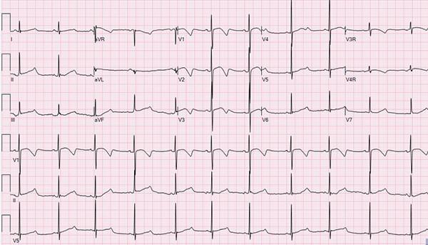 El EKG Pediátrico y el Síndrome de QT Largo