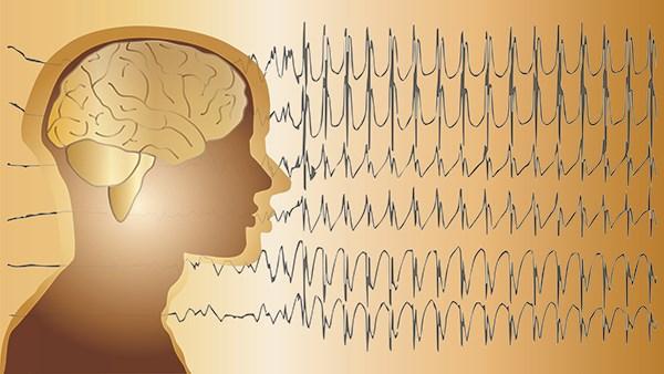 Medicamentos para el Status Epilepticus