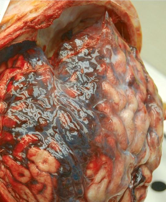 Hemorragia subaracnoidea: un diagnóstico y manejo que no puedes fallar
