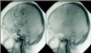 Declaración de posición de la ACMT: asuntos de toxicología en la determinación de muerte cerebral