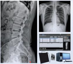 DR upgrade package_image 01 ver 01