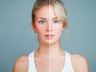 5 Simple Remedies for Embarassing Rosacea