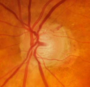Trial of Vitamin B3 for glaucoma started at Melbourne Eye Specialists