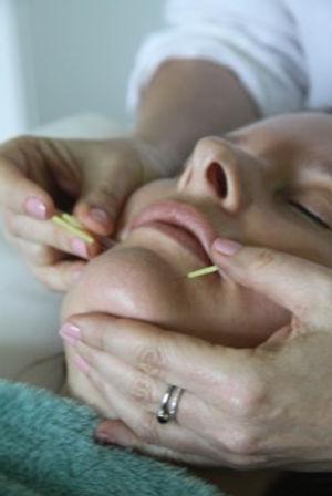 kelli howard cosmetic acupuncture.jpeg