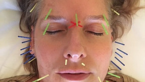 Cosmetic Acupuncture - Timeline Results