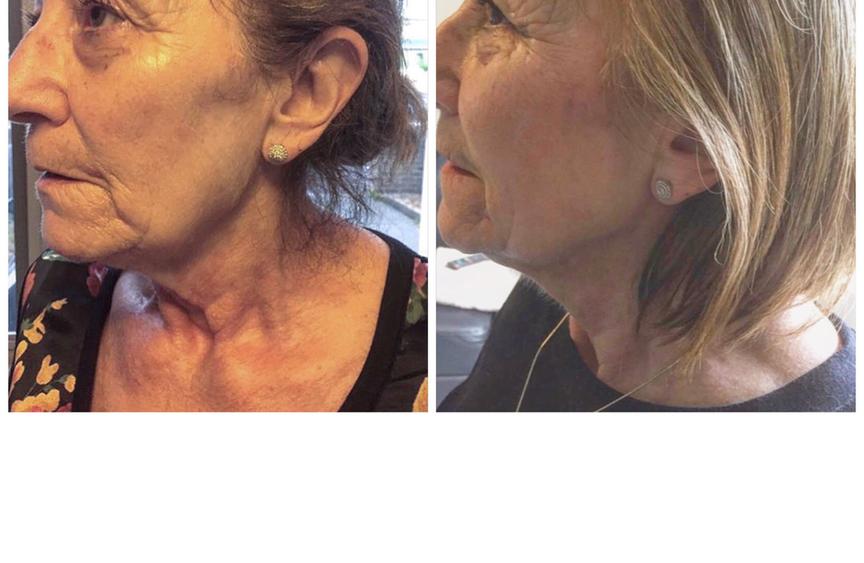 Rejuvinated Skin